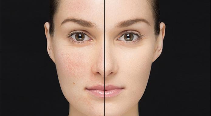 اهمیت زیرسازی پوست